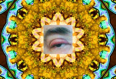 Eyeplate